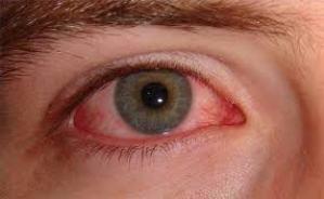 eye infection.jpg